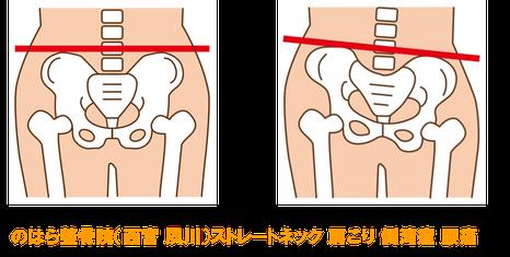 骨盤背骨のゆがみは肩こり腰痛ストレートネック側湾症の原因です