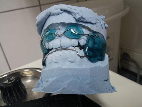 Dentallabor Dietlikon Zürich - Zahntechnik Zahnprothesen und Zahnschienen