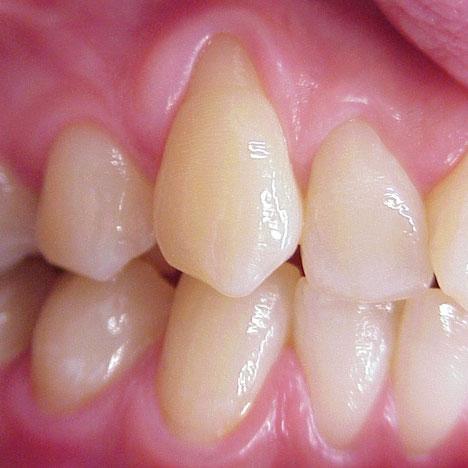 Zahnreihe mit Parodontose