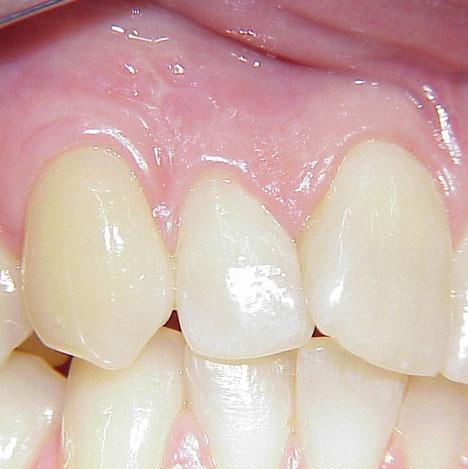 Zahnreihe nach erfolgreicher Parodontosebehandlung