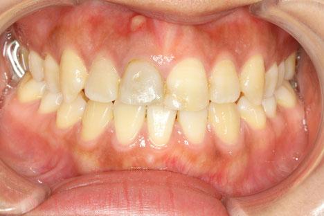 神経のない歯 変色歯