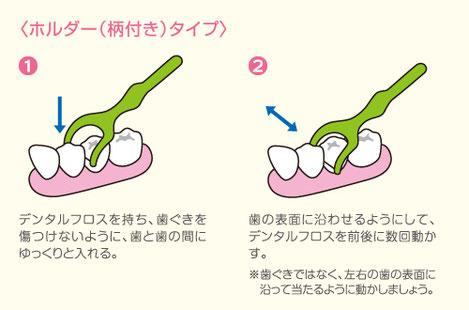 八戸市の歯医者 くぼた歯科医院 むし歯 歯周病 根 おすすめ