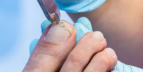 Spezielle Nagelbehandlung Hamm