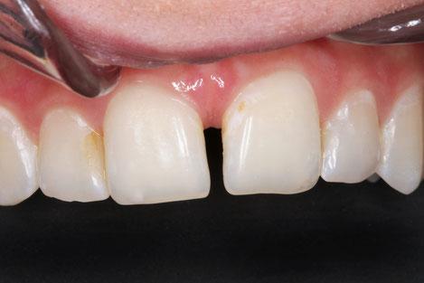 Zahnlücken an Frontzähnen können unter Umständen mit Kompositkunststoffen aufmodelliert werden.