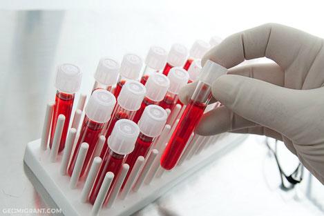 Граждане Грузии могут бесплатно получит таблетки нового поколения от Гепатита С