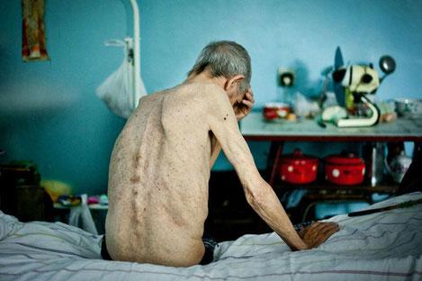 «Туберкулез» уходит из Грузии