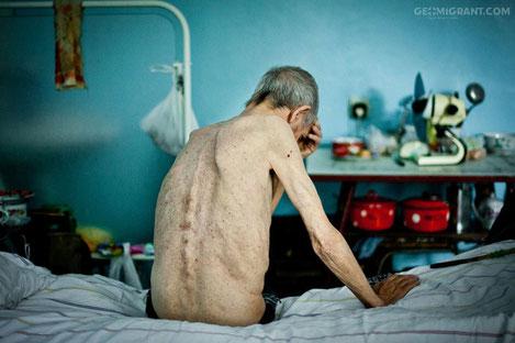 Лечение туберкулеза в Грузии станет обязательным