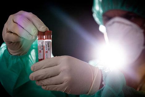 Грузинские медики вылечили более 75% инфицированных «COVID19»