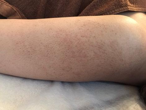 二の腕のぶつぶつの改善にはグリンピール。サロンドノム