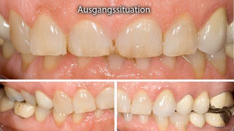 Bisshebung in der Zahnarztpraxis Burbach in Gross Umstadt