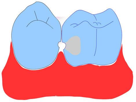 Zahnseide und Kontaktpunktkaries