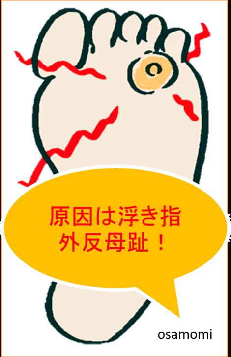 オサモミ整体院 タコ 魚の目 浮き指