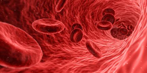 Ultraschall-Screening auf Aneurysmen der Bauchaorta