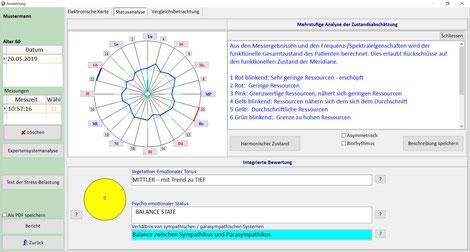 Meridianuhr mit zusätzlichen Erklärungen als erster Grobüberblick