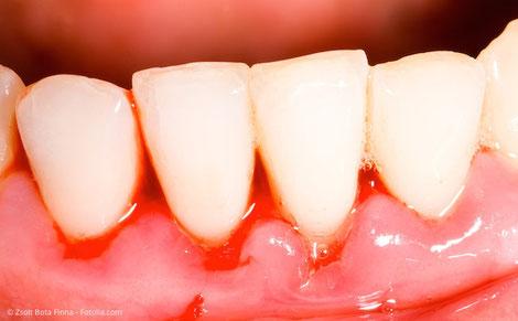 Blutendes Zahnfleisch kann ein erstes Anzeichen für Parodontose sein. (© Zsolt Bota Finna - Fotolia.com)