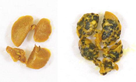 写真: 肺に転移した皮膚ガン細胞結節(右)