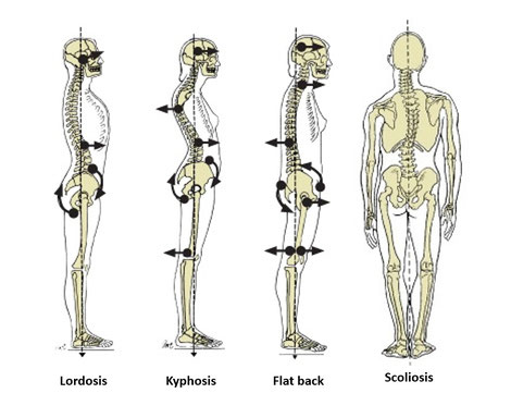 Types of postures that can lead to back pain.