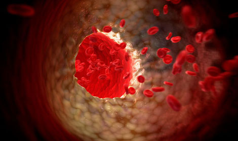 Cholesterol particles in the blood stream