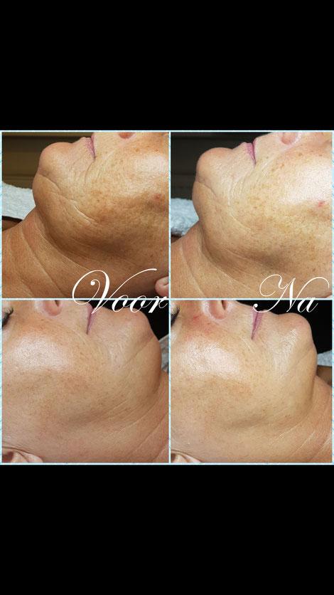 huidverbetering rimpelbehandeling eindhoven salon antiaging