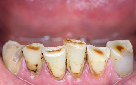 Abgeknirschte und abgenutzte Zähne wirken nicht ästhetisch und können mit modernen Methoden rekonstruiert werden.
