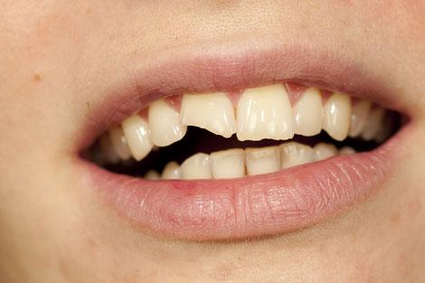 Abgebrochen Zahnecken können mit Kompositkunststoffen wieder nachgebildet werden