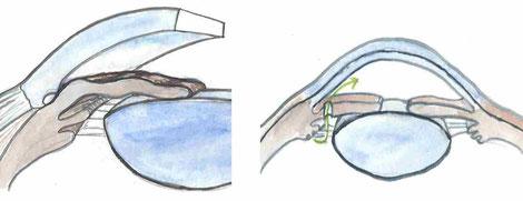Das Wirkprinzip einer Laseriridektomie bei Engwinkelglaukom wird anhand einer Skizze verdeutlicht.