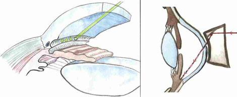 Skizzen zur Verdeutlichung der Durchführung einer selektiven Lasertrabekuloplastik.