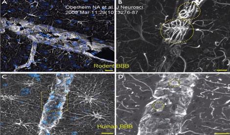 barrière hémato-encéphalique rat et humain