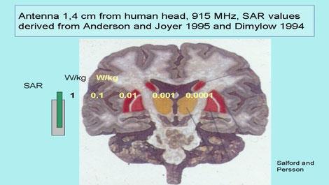 effets secondes des ondes électromagnétiques sur le cerveau