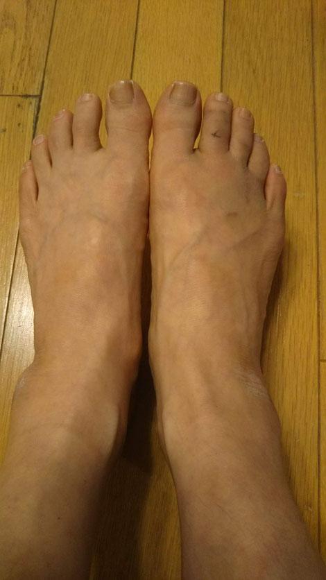 右足第2指を骨折、治癒後の両足