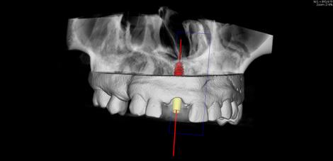 DVT-Aufnahme mit Implantat