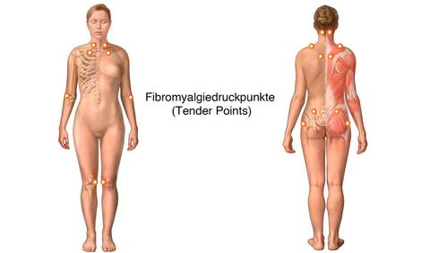 Fibromyalgiedruckpunkte Tender Points. Bei Fibromyalgie kommt es begleitend zu zahlreichen Beschwerden. Dazu gehören unter anderem Schlafstörungen, Müdigkeit, Morgensteifigkeit, Zittern und Depressionen.