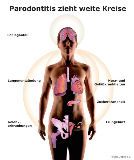 Die möglichen Folgen einer Parodontose für die Gesundheit. (© proDente e.V.)