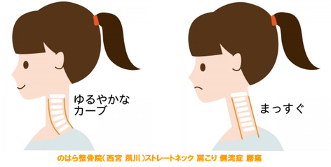 正常な頸椎とストレートネックの比較