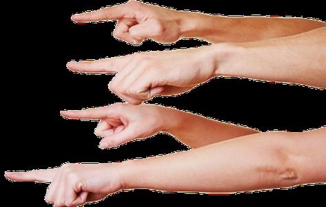 Trauma Traumatherapie Psychotherapie Osnabrück Essen Anja Flörke soziale Phobie Angst vor Ablehnung Fingerzeig Finger Ausgrenzung