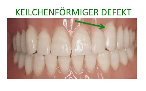 Defekt durch zu viel Zähne putzen