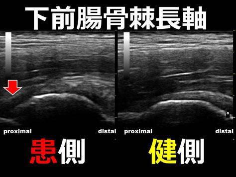 豊田市 おおつか接骨院 下前腸骨棘裂離骨折 超音波画像