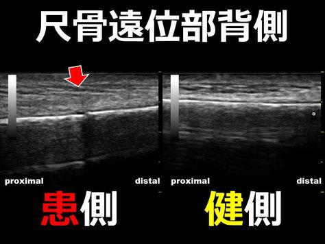 豊田市 接骨院 おおつか接骨院 尺骨骨折 超音波画像