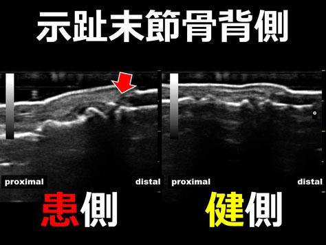 豊田市 接骨院 おおつか接骨院 超音波画像 示趾末節骨裂離骨折疑い