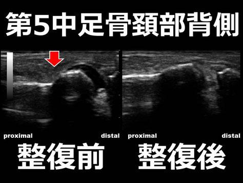 豊田市 おおつか接骨院 右第5中足骨頚部骨折疑い 超音波画像