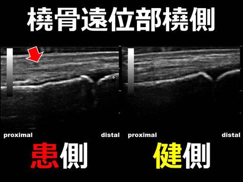 豊田市 おおつか接骨院 橈骨遠位端骨折疑い 超音波画像