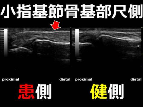 豊田市 おおつか接骨院 右小指基節骨基部骨折疑い 超音波画像