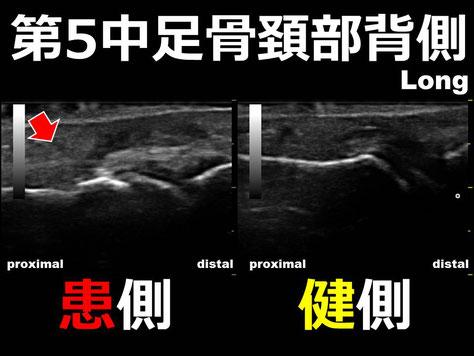 豊田市 おおつか接骨院 第5中足骨頚部骨折 超音波画像