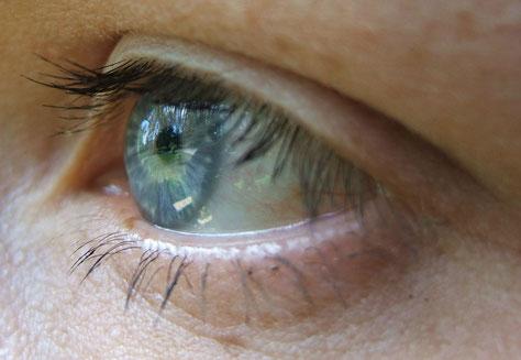Eye by Micky Zlimen [CC BY-SA 2.0]
