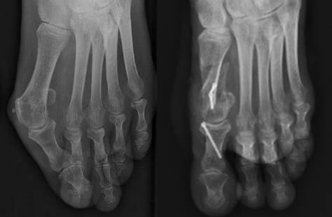 Dr Rémi orthopaedic surgeon Toulouse France Capio Clinic Croix du Sud