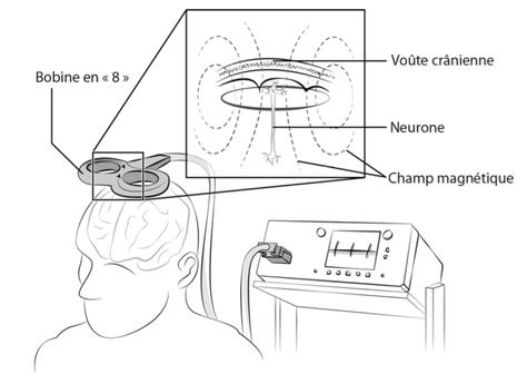 La stimulation transcrânienne (rTMS)