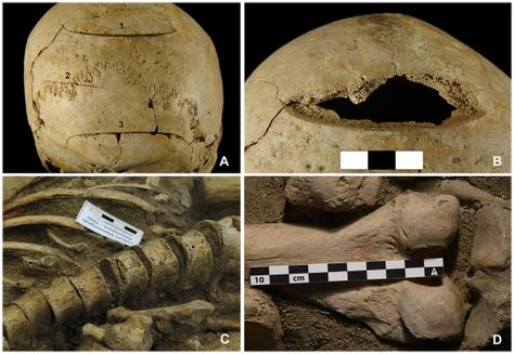 (A) L'unique blessure sévère faite avec une arme de taille, (B) Détachement d'un os du crâne, (C) Blessure à la vertèbre, (D) Blessure au condyle latéral du fémur
