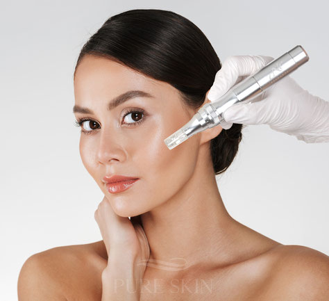 Microneedling, Anti Aging, Micro Needling, Eich, Sempach, Sursee, Kosmetik, medizinische Kosmetik, Akne, Behandlung