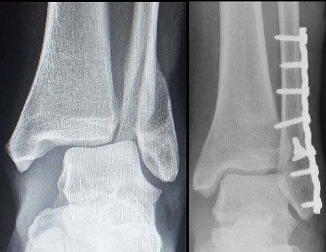 cirugía deportiva tobillo Dr Rémi Toulouse St Jean du Languedoc La Croix du Sud