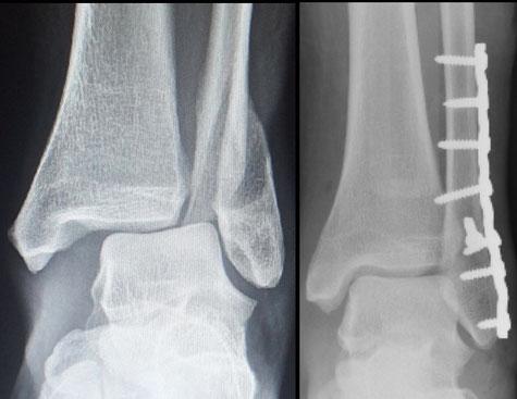 chirurgie orthopédique sport Dr Rémi TOulouse